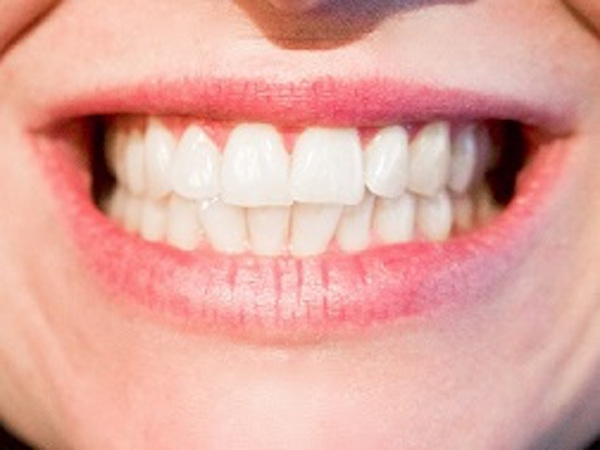 Comment se blanchir les dents soi-même?